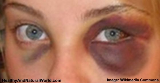 0e135882bddf3f8a683757fb37dda80f - How To Get Rid Of Swelling Black Eyes Fast
