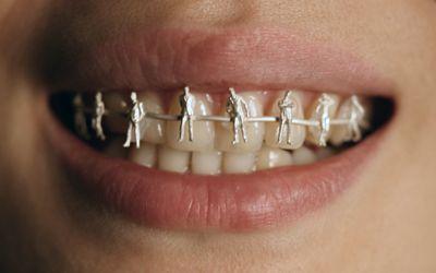 People Braces Jewelry Inspired Pinterest People