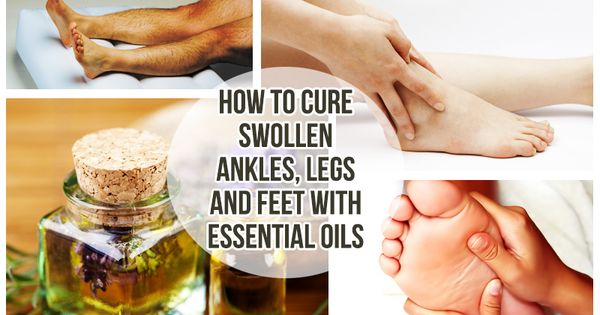 How To Cure Swollen Ankles Legs And Feet With Essential