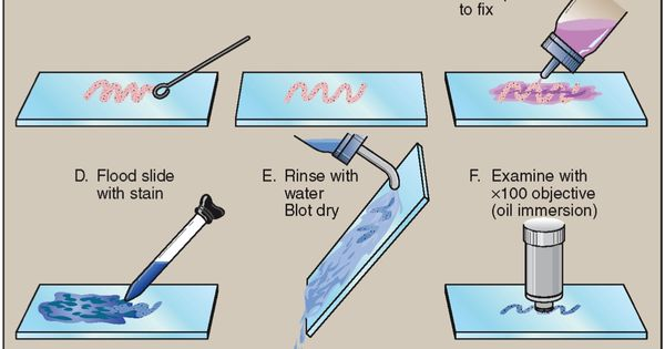 simple stain lab Steps of simple stain  1) stain heat-fixed smear with methylene blue for 1 min 2) rinse with water 3) dry with bibulous paper  organisms used in gram stain lab  bacillus megaterium escherichia coli pseudomonas aeruginosa stephylococcus aureus  negative stain.