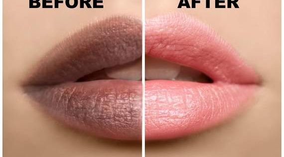 3 Super Effective Natural Scrubs That Can Turn Dark Lips To