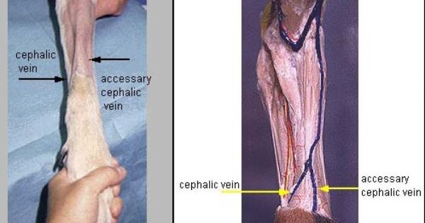 endoplasmic reticulun- is the vaines of an animal and this picture, Cephalic Vein