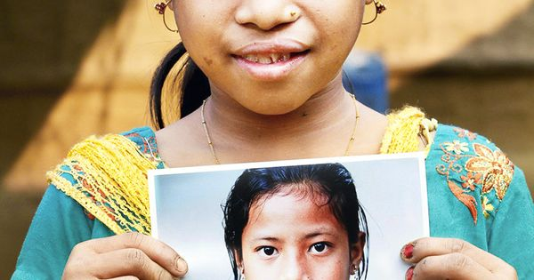 Cleft lip and palate before and after operation smile