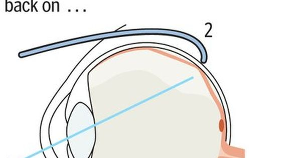 Natural Cures For Detached Retina