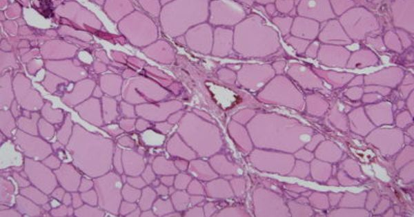 Thyroid Gland Histology Thyroid Gland Histology Thyroid