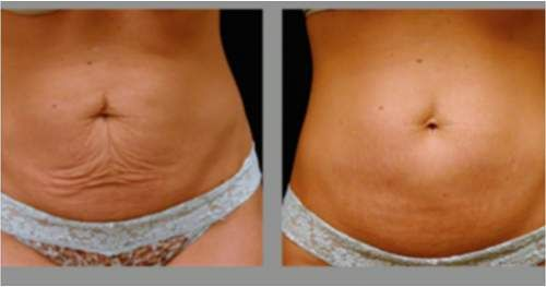 20 Ways To Tighten Skin After Weight Loss | Tighten skin ...