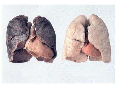 Tabac comment nettoyer ses poumons naturellement minceur pinterest comment nettoyer - Nettoyer son four naturellement ...