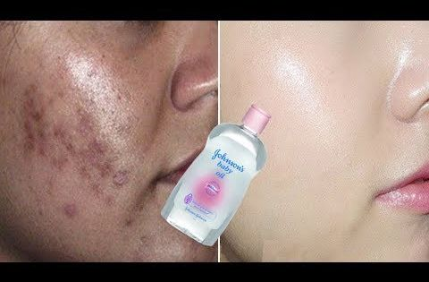 How To Remove Wrinkles Freckles And Dark Spots By Johnson Baby Oil In 3 Days Youtube Johnson Baby Oil Baby Oil Makeup Wrinkles