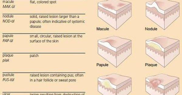 Dermatology Skin Lesion Terms