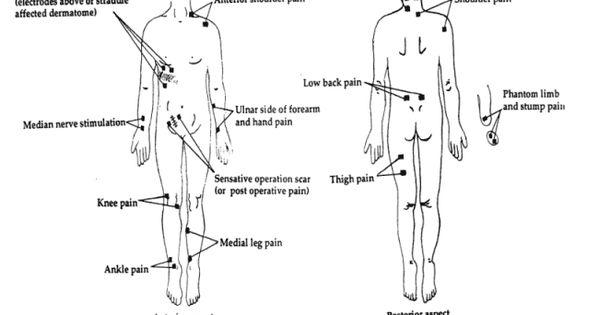 Tens Transcutaneous Electronic Nerve Stimulation Pain Control Unit Placement Chart