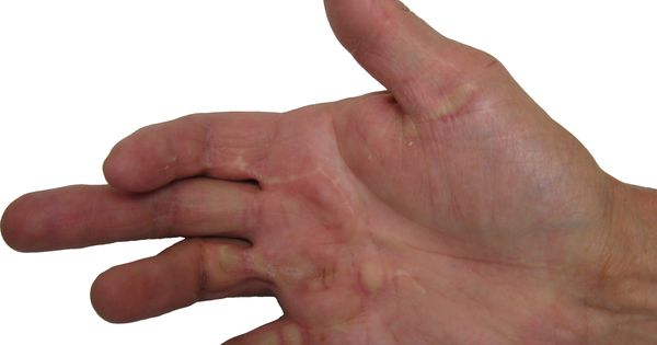 Options For Severe Dupuytren Recontracture 2/2 - http ...