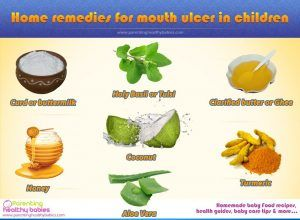 7 Home Remedy For Mouth Ulcer In Children During Summers Mouth
