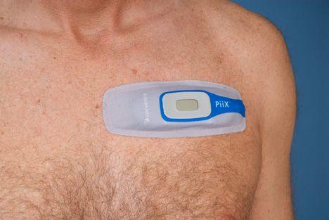 Corventis Ecg Wireless Heart Arrhythmia Monitoring