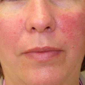 Best 5 Cosmetics For Rosecea How To Cure Rosecea With Cosmetics Rosacea Acne Treatment How To Treat Rosacea Rosacea Treatment