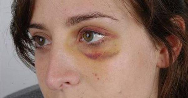 1bc603d8223fc4a47c3259fa162c1696 - How To Get Rid Of A Black Eye Really Fast