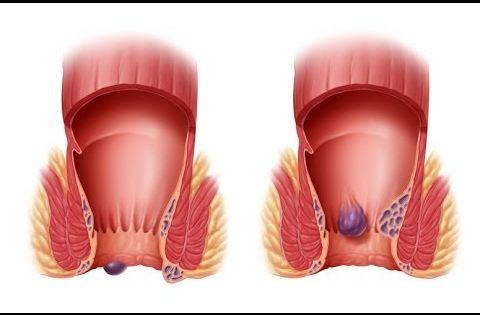 What Is Hemorrhoids External Hemorrhoid Treatment