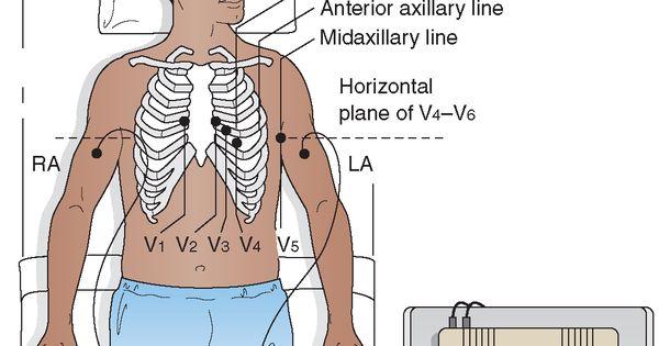 Twelve-lead Electrocardiogram (ECG) Electrode Placement