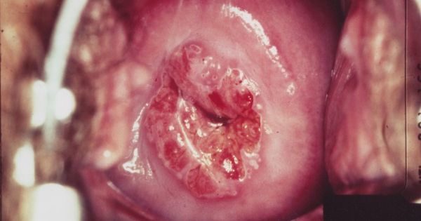 how to detect cervical cancer