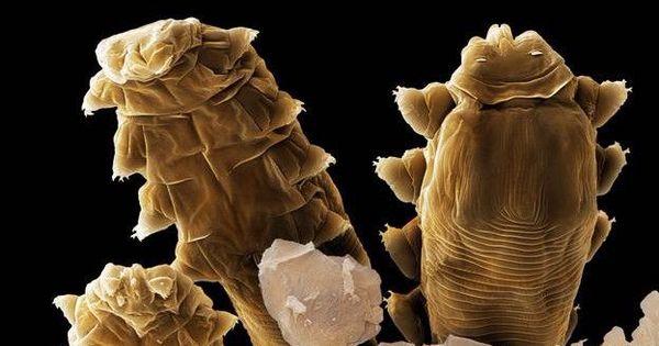 Los caros microsc picos que viven en nuestra cara earth - Donde viven los acaros ...