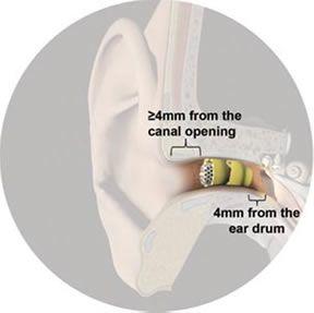 Pin On Buzzing In Ear