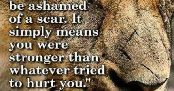 Never Be Ashamed Of A Scar, It Shows You Are An #overcomer
