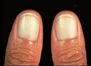 21 Finger Abnormalities And What Important Things They Might Be