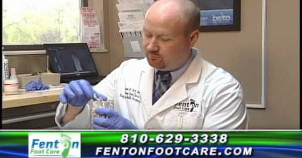 Fenton Foot Care Dr Jame Hirt Commercial Feet Care Fenton Care