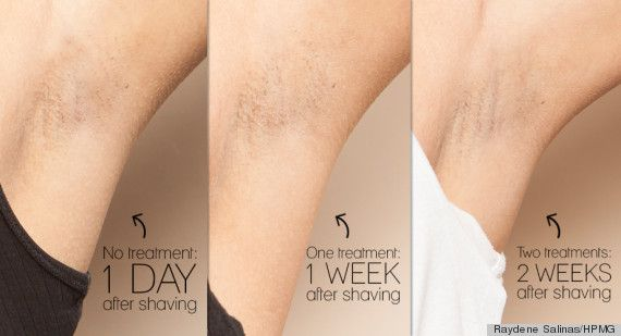 Why Laser Hair Removal Just Might Be Worth Every Penny Best
