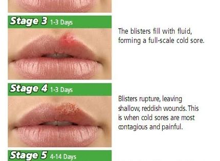 Cold-Sores : Stages of progression of the lesion ...