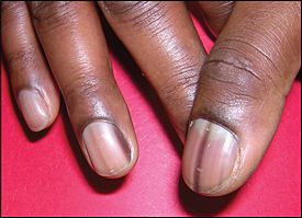 Evaluation Of Nail Abnormalities American Family Physician Lines On Nails Black Lines Under Nails Nails