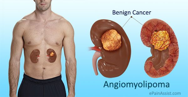 Changes In Kidney Structure Caused By Angiomyolipoma Kidney Tumor Liver Detox Symptoms Tuberous Sclerosis