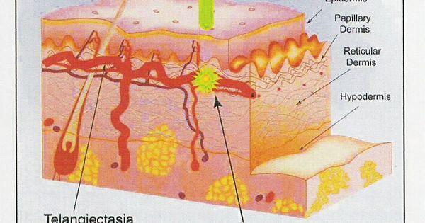 Hereditary Hemorrhagic Telangiectasia: Diagnosis and ...