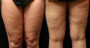 Pin On Cellulite Removal
