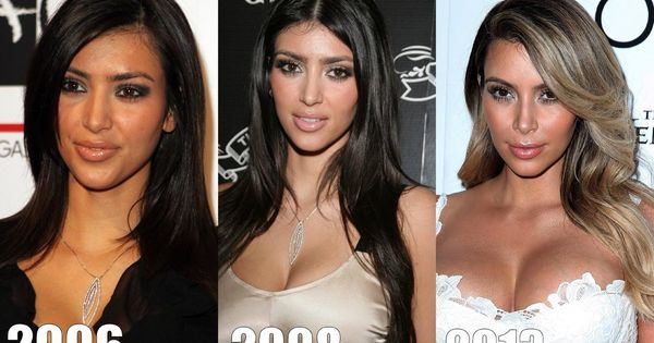 Plastic surgery before and after pictures ... - Dailymotion