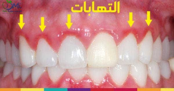 غالبا ما يكون مرض بسيط و لكنه قد يؤدي الى التهابات خطيره في اللثة لذلك يجب علاجه سريعا إليك طرق علاج التهاب اللث Gingivitis Gum Disease Gum Disease Remedies