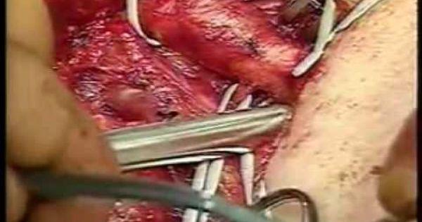 femoral popliteal bypass femoral vein graft helpfull info
