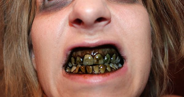 rotten diy zombie teeth for halloween, just use charcoal powder, Human Body