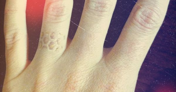 my honeycomb ring finger thought about removing it