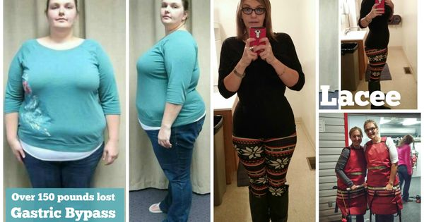 gastric sleeve before and after pictures 2015 - Google ...