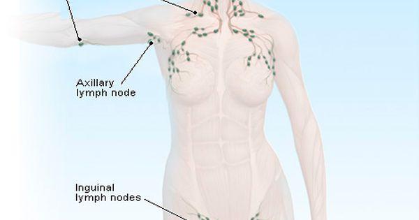 Lymph Nodes Illustration Lymph Nodes Lymphatic System Lymph Nodes Swollen Lymph Nodes