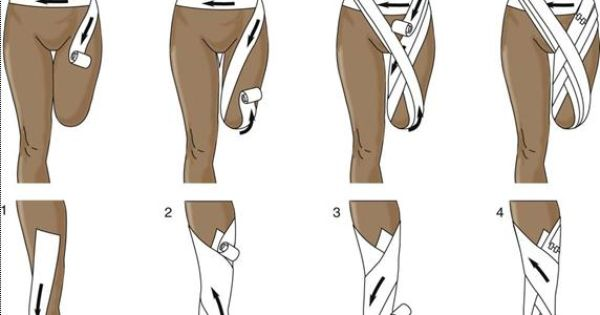 nursing care of below knee amputation Exercises for below knee amputation  talk to your doctor or health care team if you have any questions about  strengthening exercises for below knee amputation.
