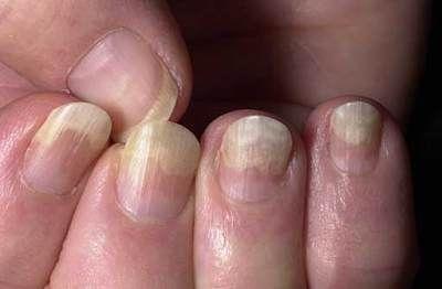 6 Common Fingernail Problems Nail Health Nail Problems Health