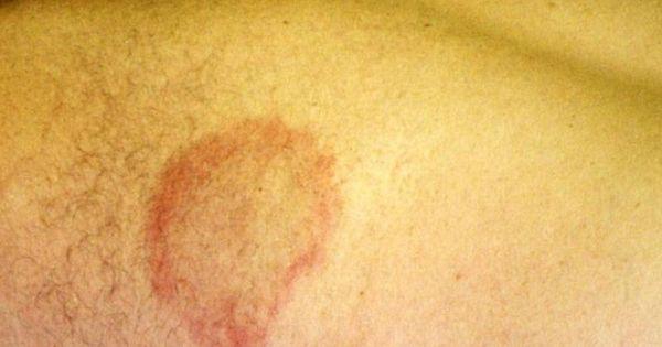 Liver Disease Skin Symptoms Rashes | etc | Pinterest