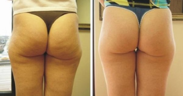 how to get rid of cellulite on thighs with surgery