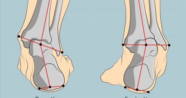 Best Running Shoes for Supination: Top