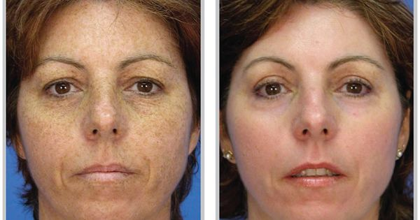 Skin Care Before and After What Afterglow can do for