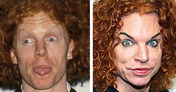 Carrot Top Before And After Plastic Surgery Eyebrows