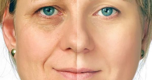 Cream facial removing wrinkle manufactured