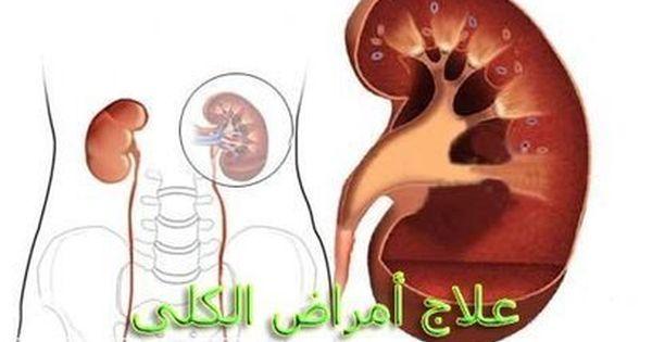 أعراض الفشل الكلوي في وقت مبكر من النساء Kidneydisease Kidney Failure Treatment Kidney Failure Symptoms Kidney Failure