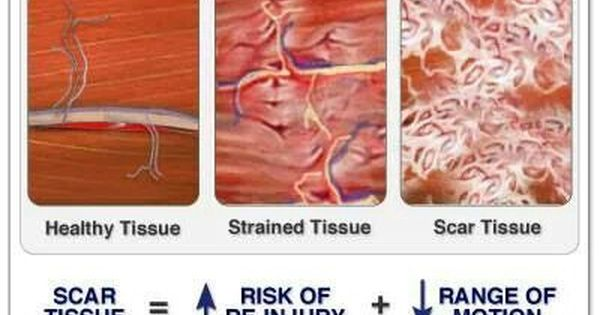 Scar tissue | Athletic Training | Pinterest